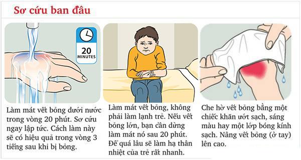 Sơ cứu khi trẻ bị bỏng
